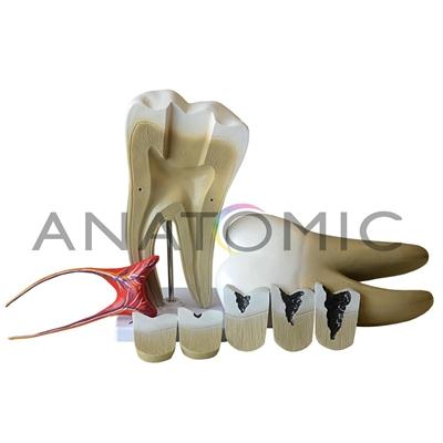 Dente Molar Ampliado com Evolução da Cárie, em 8 Partes