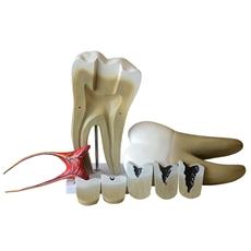 Dente Molar Ampliado com Evolução da Cárie, em 8 Partes - TGD-0311-G