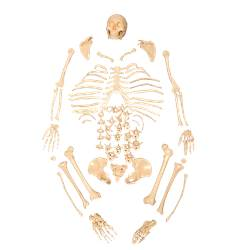 Esqueleto Padrão, Tamanho Natural, Desarticulado - TGD-0101-C