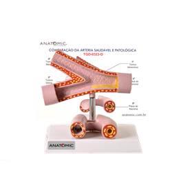 Comparação da Artéria Saudável e Patológica - TGD-0323-D