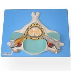 Quinta Vertebra Cervical com Medula Espinhal e Nervos - TZJ-0144