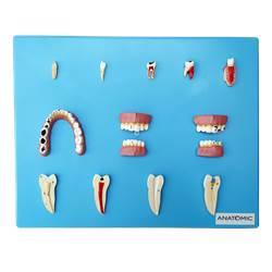Patologia Dentária com 12 Peças - TZJ-0311-P