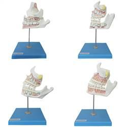 Desenvolvimento da Dentição com 4 Peças - TZJ-0313-D